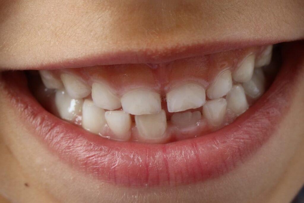 Czy warto leczyć zęby mleczne