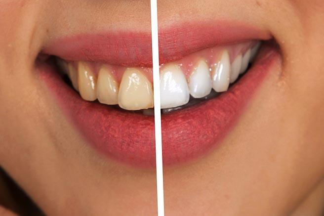 Czy wybielanie zębów jest zdrowe
